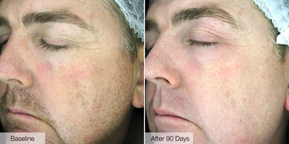 Before and After Lee's 90 day skin journey - #RVR90