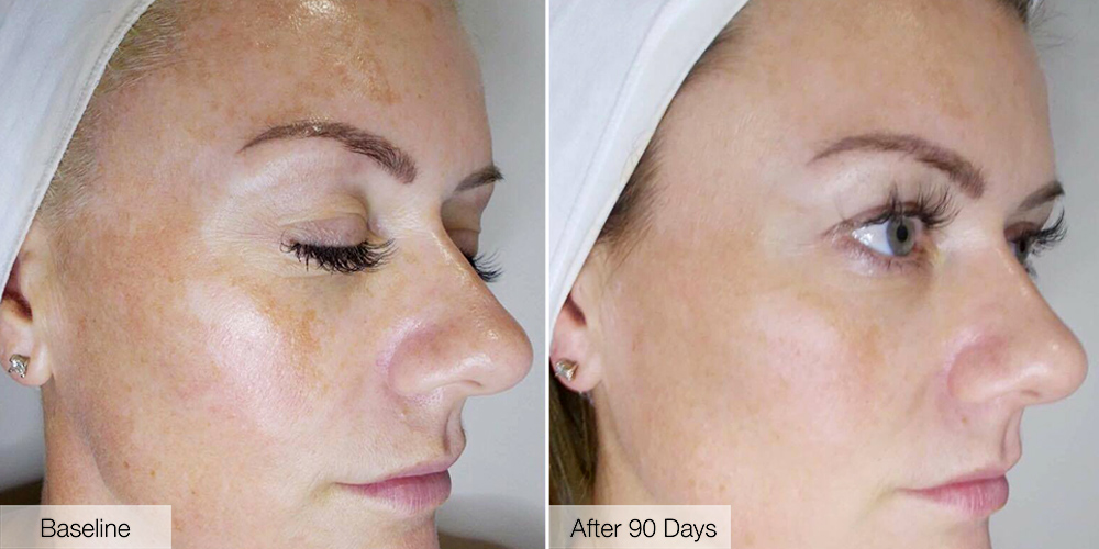 Sue-Ann's incredible skin transformation following RVR90