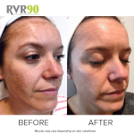 #RVR90 2018 – Hayley's Skin Journey – Targeting Pigmentation