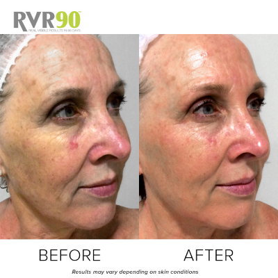 #RVR90 2018 – Maxine's Skin Journey – Targeting Anti-Ageing
