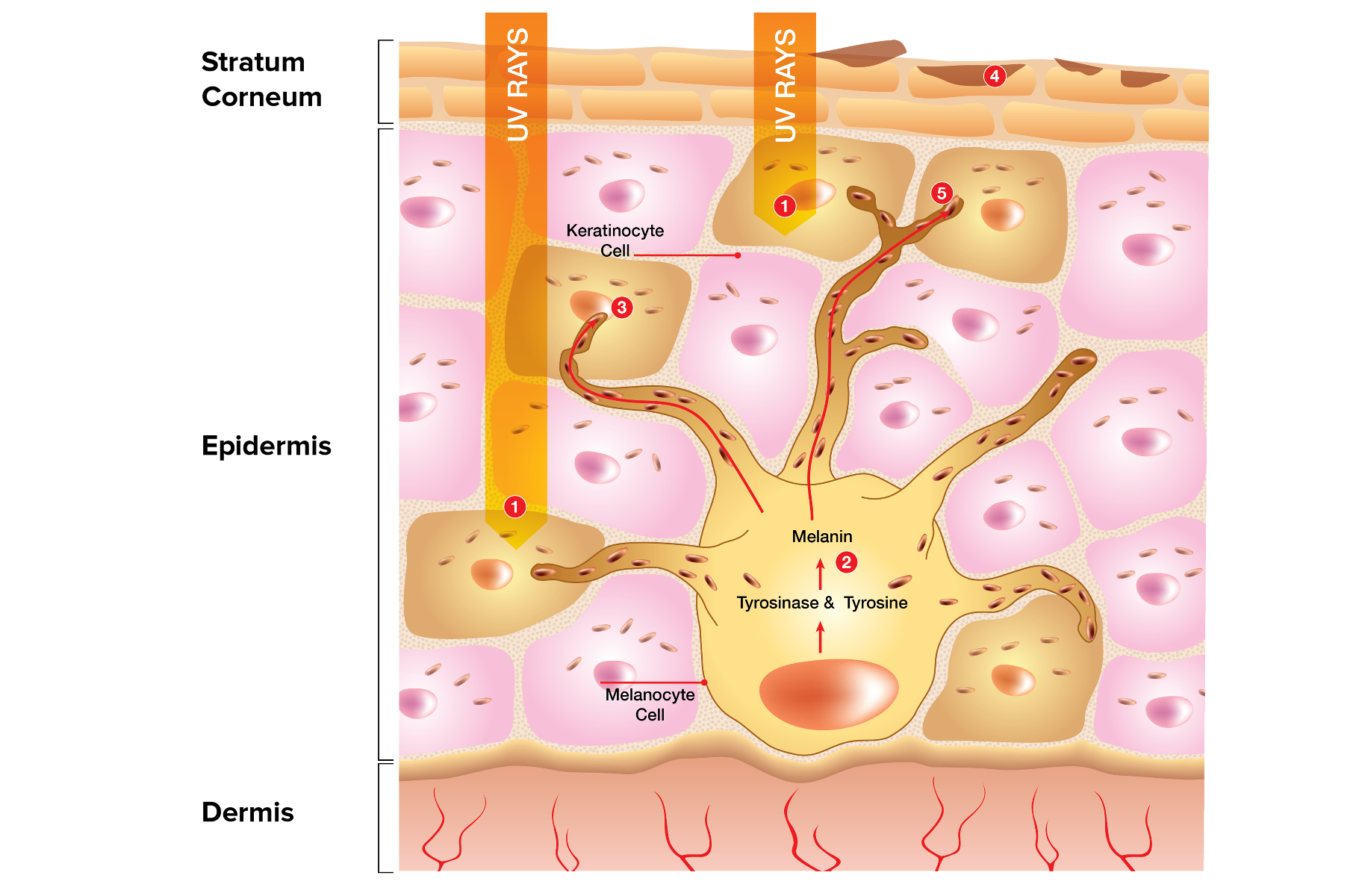 How hyperpigmentation is formed