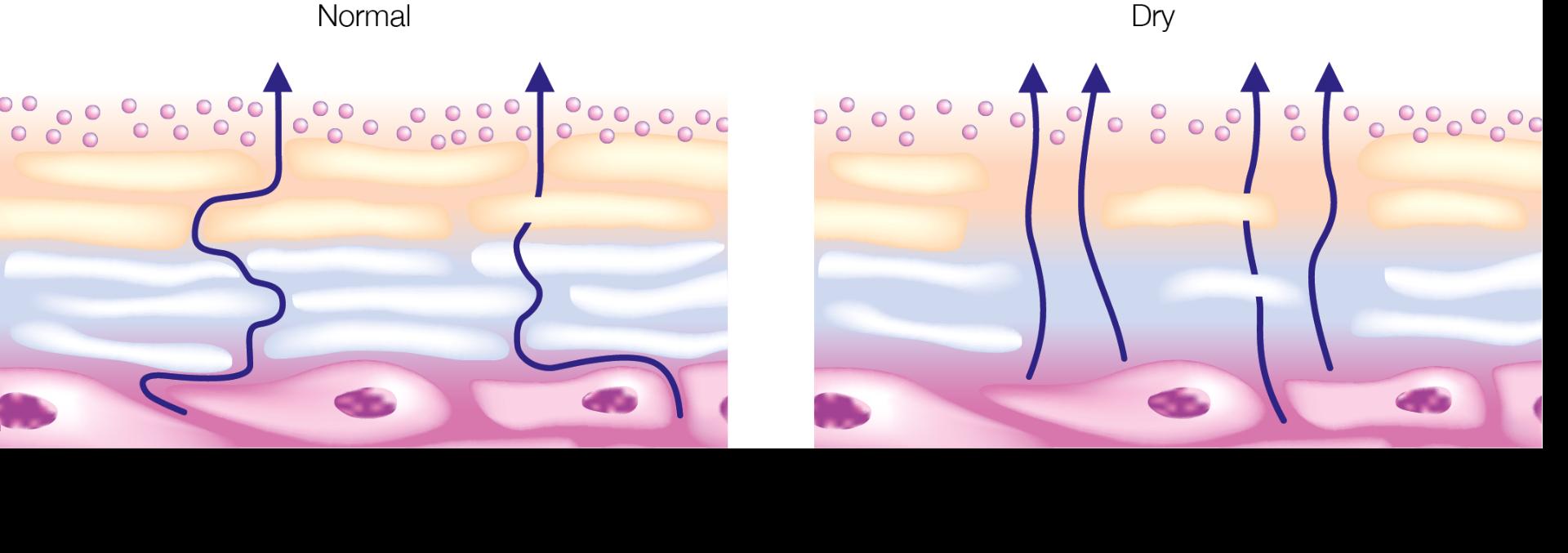 Dry vs normal skin