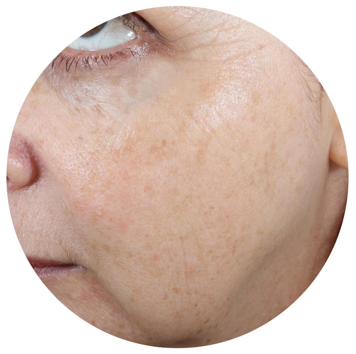 A-Zyme Peel Treatment