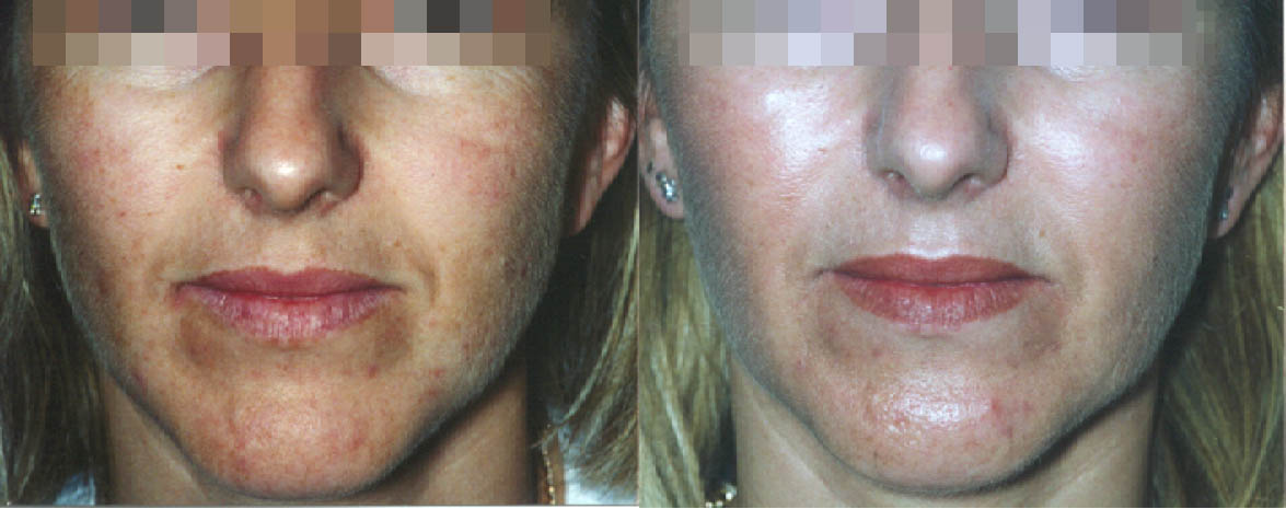 lactic peels combined ultraceuticals homecare before and after