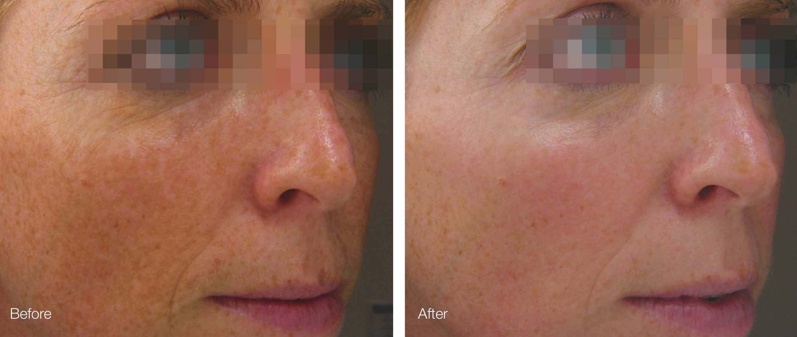 microdermabrasion and ultrasonophoresis and lactic peel before and after