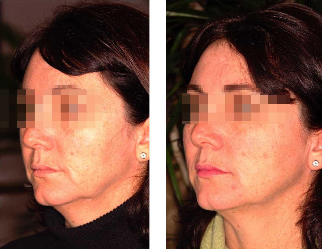 ultra c facial cream 23