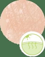 Body - Dryness & Dehydration